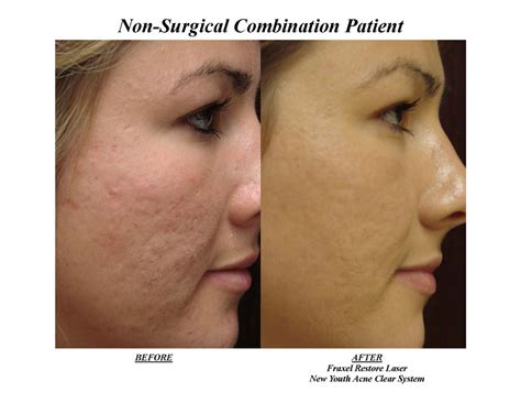 Co2 laser versus dermabrasion for acne scars picture 1