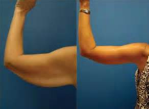 liposuction weight loss percentages picture 14