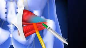 hip joint pain picture 10