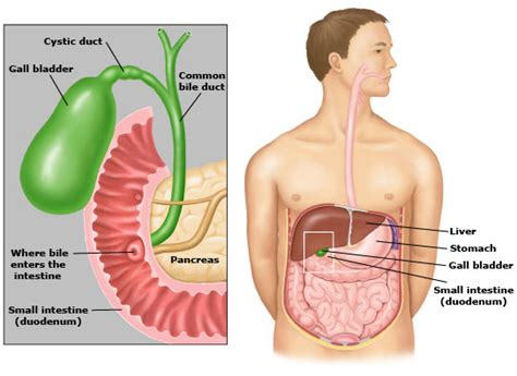 diseased gall bladder causes constipation picture 3