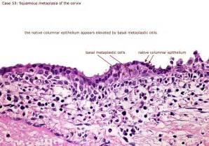 pdf artikel gastritis erosif picture 7