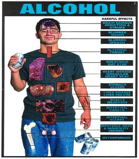alchoholism and liver cirrhosis picture 10