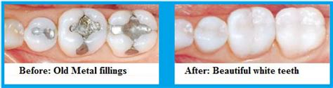 filling cavities in wisdom h picture 5
