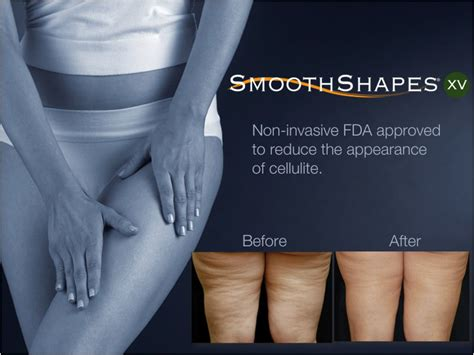 smoothshapes cellulite treatment where picture 3