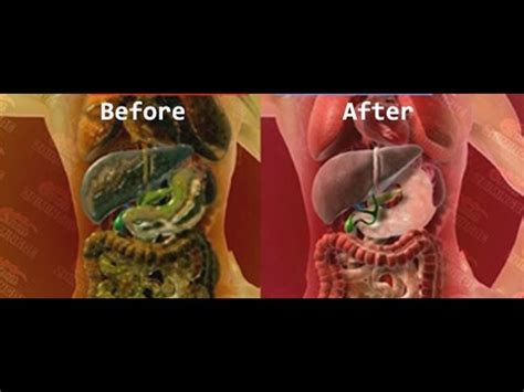artery cleansing herbal supplements picture 22