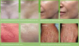 exposed acne treatment delivery picture 14