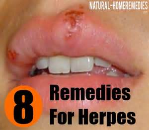 remedies for herpes picture 2