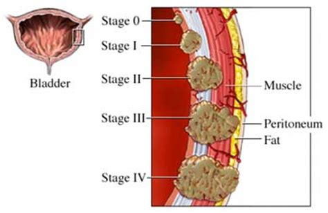 frequent bladder holding causes flacid detrusor picture 13