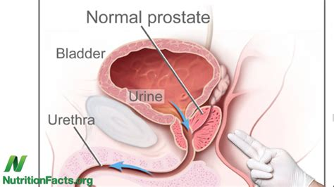How to your prostate video picture 6
