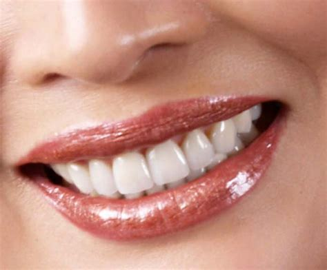 teeth whiteners picture 1