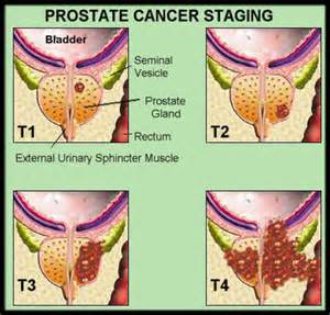what age does prostate cancer occurs picture 6