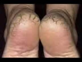vicks vapor rub acne treatment picture 9