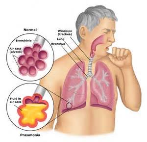 treatment for colon cancer in elderly picture 4