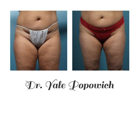 bariatricdoctor middle tn picture 7