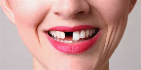 cheapest cosmetic teeth picture 9