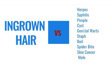 difference between ingrown hair and genital warts picture 3