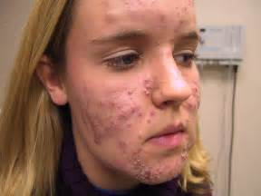 menopausal acne picture 7