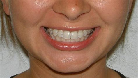 childrens braces for teeth picture 7