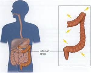 pain in small bowel picture 1