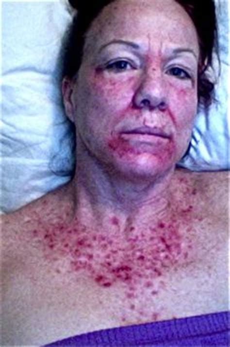 chemotherapy effects on skin picture 2
