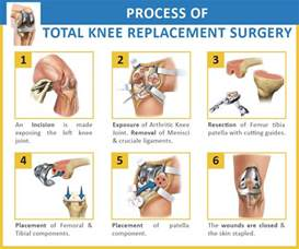 cost of knee joint replacement picture 5