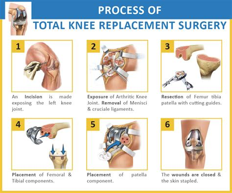 arthroscopy of knee joint picture 14