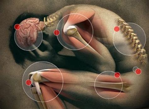 joint pain aches picture 2