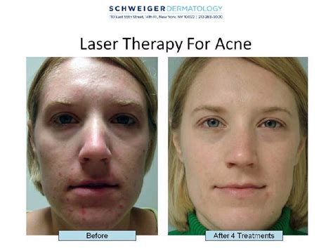 skin clear acne and laser center picture 1