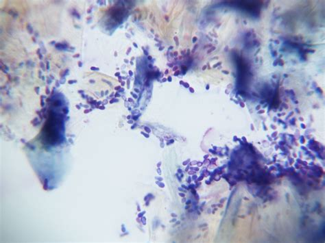 yeast ear infection picture 19