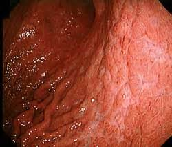 gastrointestinal malt lymphoma and crohn's disease picture 9