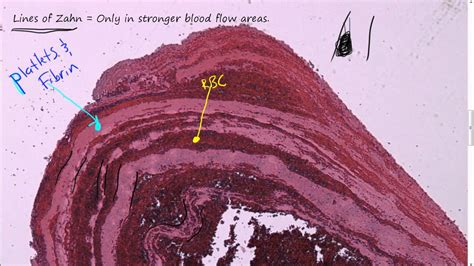 blood flow path picture 2