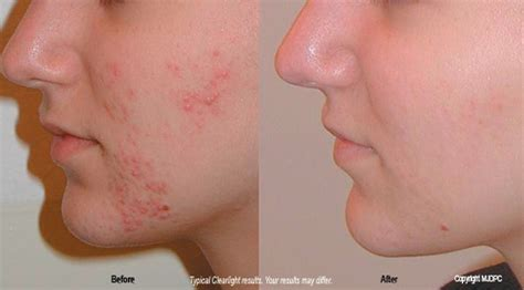clearlight acne treatment picture 1