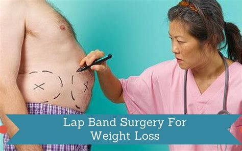 lap band and weight loss picture 3