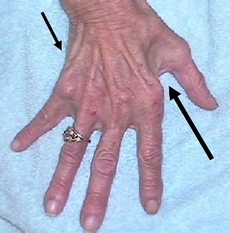Muscle deterioration picture 2