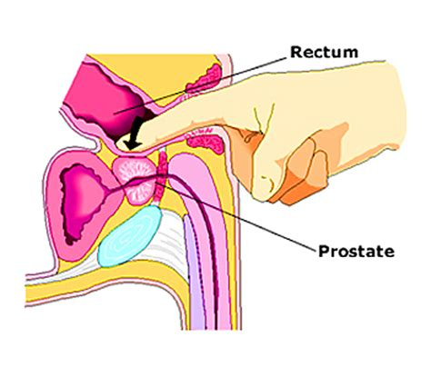 professional prostate milkers indianapolis picture 2