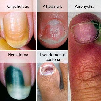 can candida cause toe nail fungus picture 9