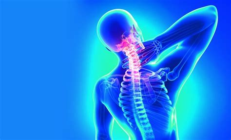 can h cause neck pain picture 18