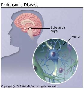 parkinsons disease and herbal treatments picture 7