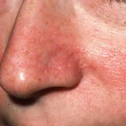 rosacea 4 types picture 5