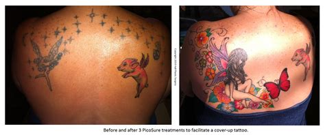 tattoo on stretch marks: picture 17