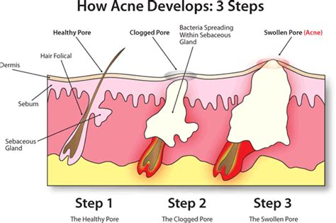 how long does it take tazorac to work for acne picture 8