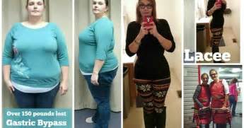 gastric bypass for weight loss picture 7