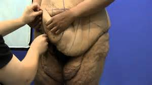 liposuction for weight loss doctors picture 6