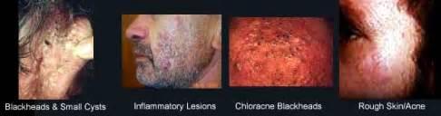 skin conditions agent orange picture 11