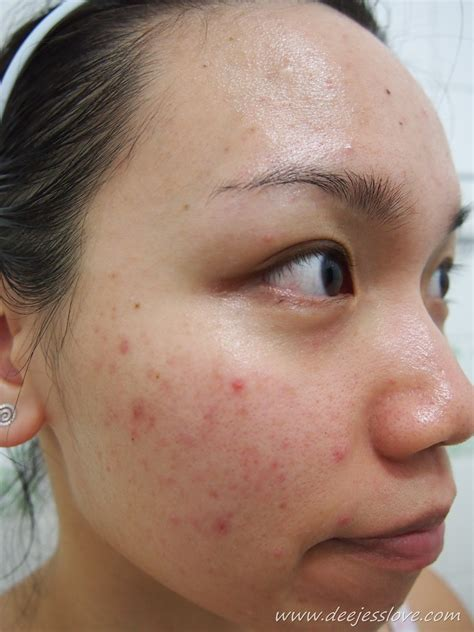 acne facial picture 10