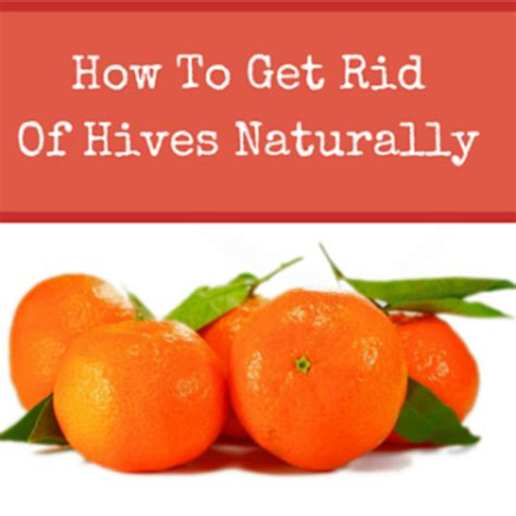 get rid of hives picture 3