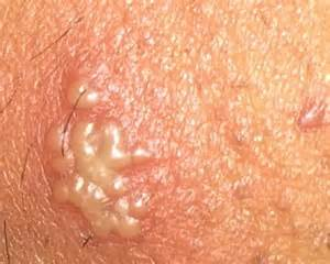herpes and fasciculations picture 5