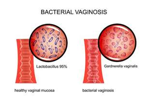 natural cures for bacterial vaginosis picture 5