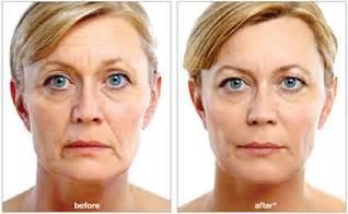 florence al laser skin care picture 11