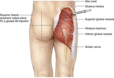 testosterone injections where to inject picture 3